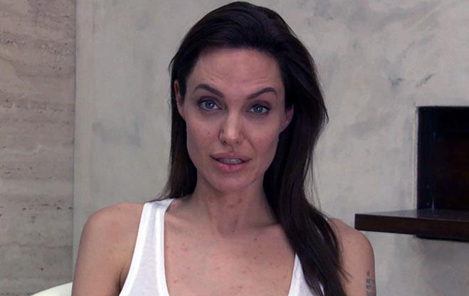 Angelina-Jolie-con-varicela-unbroken